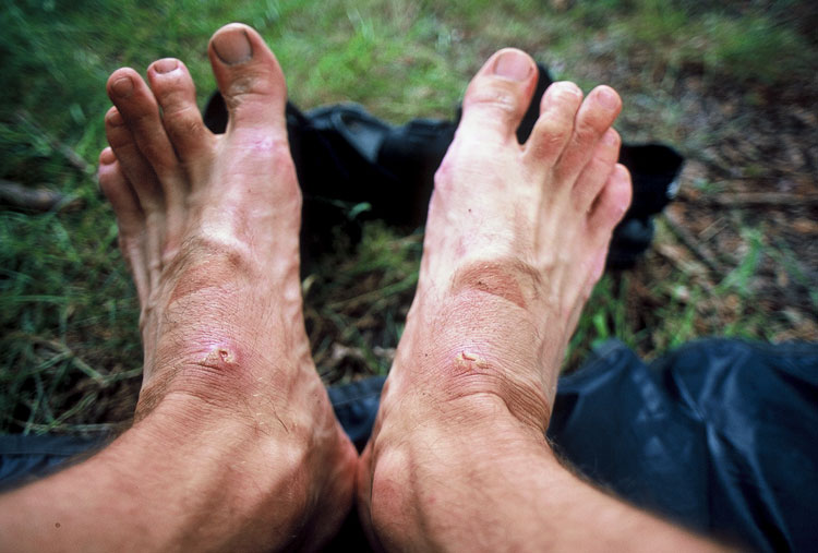 My feet after two weeks of cycling [Day 15]